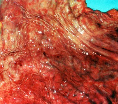 Imagen enrojecida de la mucosa gástrica. En un perro con gastritis crónica, loperamida 2mg, angiostrongylus vasorum, clorofila líquida,