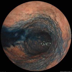 esofagitis provocada por reflujo gástrico